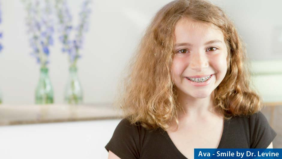 damon-braces_orthodontist-dr-levine-3266a
